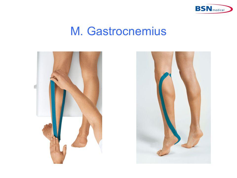 M. Gastrocnemius