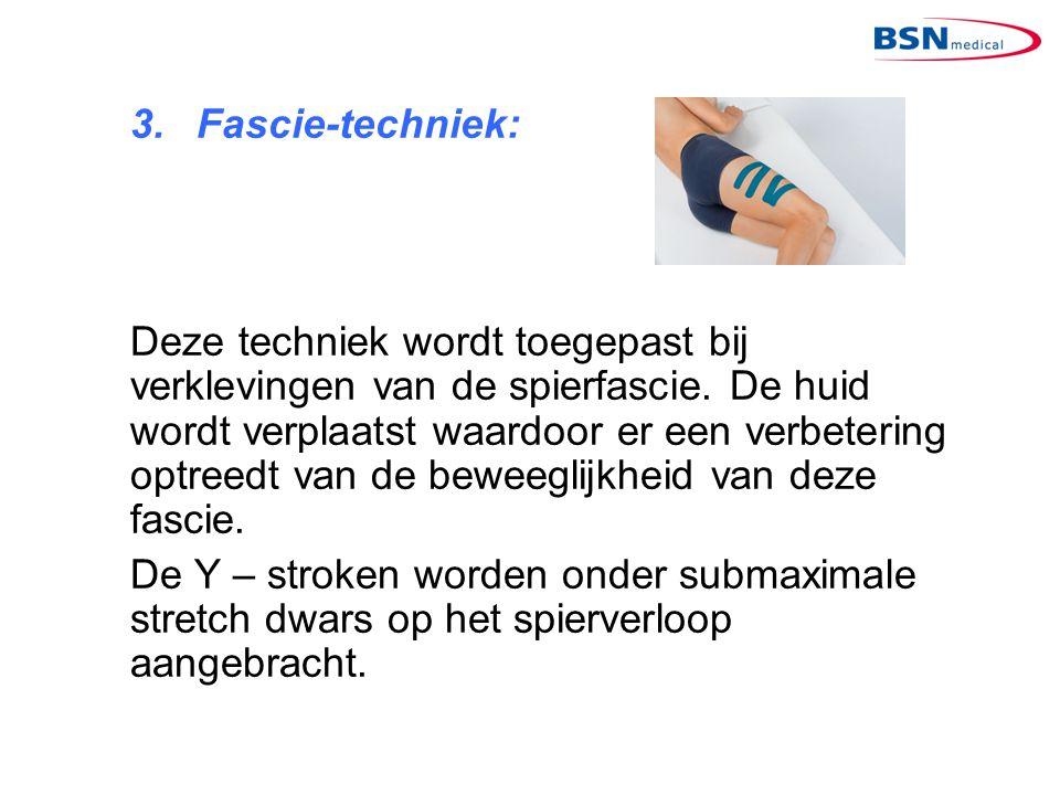 3. Fascie-techniek: Deze techniek wordt toegepast bij verklevingen van de spierfascie. De huid wordt verplaatst waardoor er een verbetering optreedt v