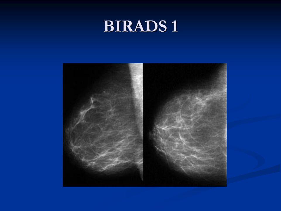 BIRADS 1