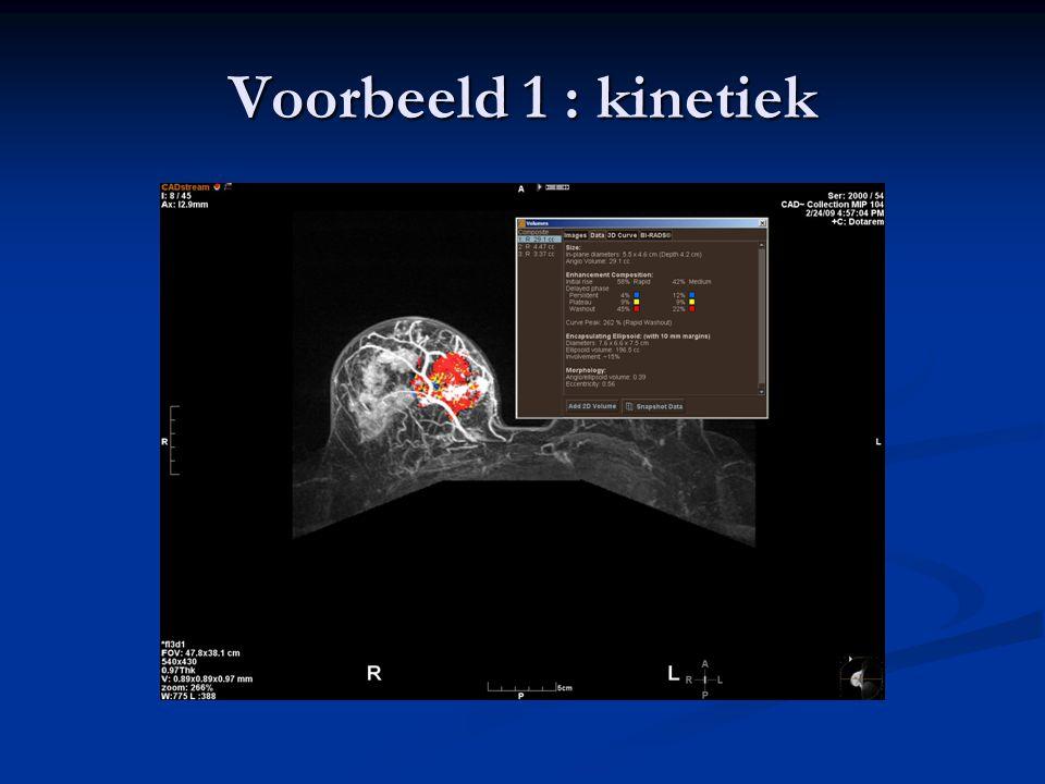 Voorbeeld 1 : kinetiek