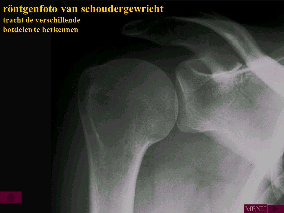röntgenfoto van schoudergewricht tracht de verschillende botdelen te herkennen MENU