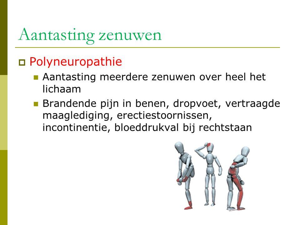 Aantasting zenuwen  Polyneuropathie  Aantasting meerdere zenuwen over heel het lichaam  Brandende pijn in benen, dropvoet, vertraagde maaglediging,