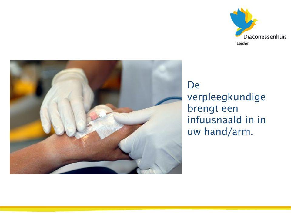 De verpleegkundige brengt een infuusnaald in in uw hand/arm.