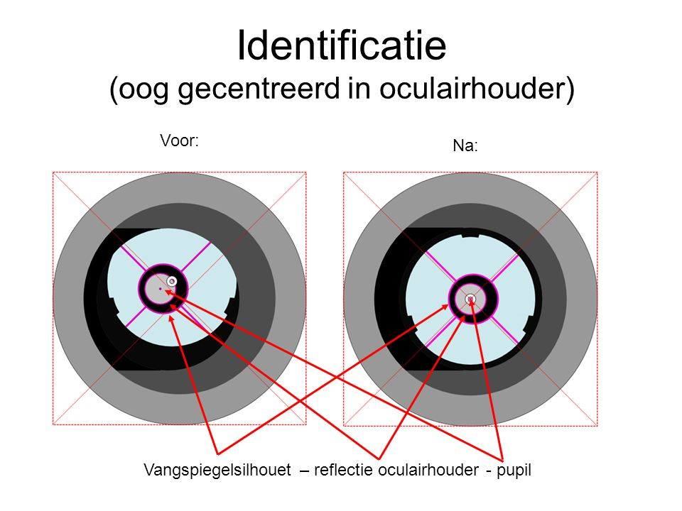 Identificatie (oog gecentreerd in oculairhouder) Voor: Na: Vangspiegelsilhouet – reflectie oculairhouder - pupil