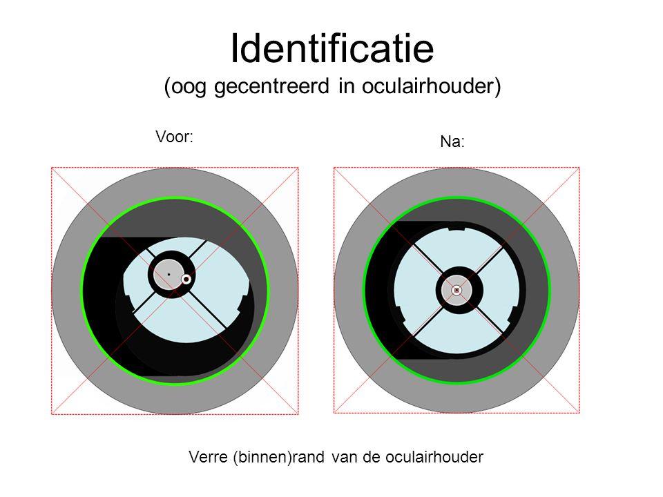 Identificatie (oog gecentreerd in oculairhouder) Voor: Na: Verre (binnen)rand van de oculairhouder