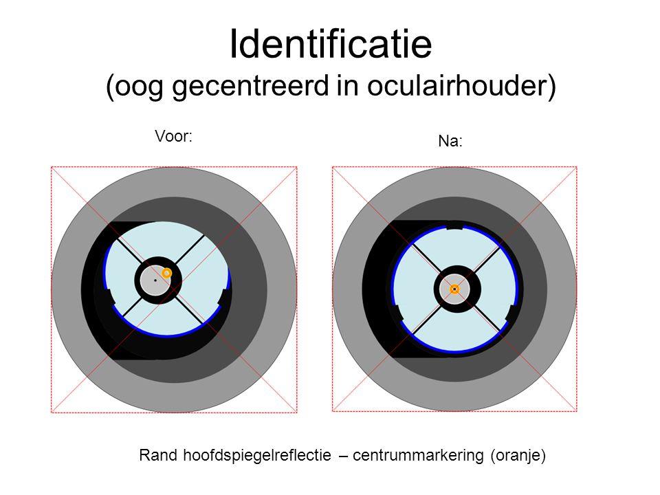 Identificatie (oog gecentreerd in oculairhouder) Voor: Na: Rand hoofdspiegelreflectie – centrummarkering (oranje)