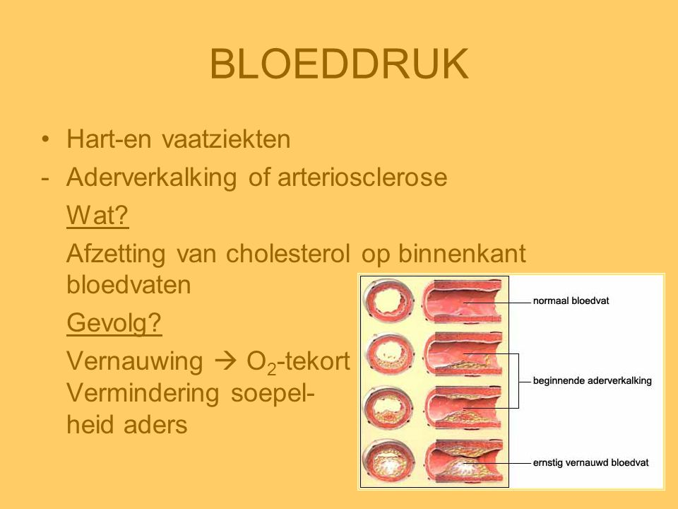 BLOEDDRUK •Hart-en vaatziekten -Aderverkalking of arteriosclerose Wat? Afzetting van cholesterol op binnenkant bloedvaten Gevolg? Vernauwing  O 2 -te