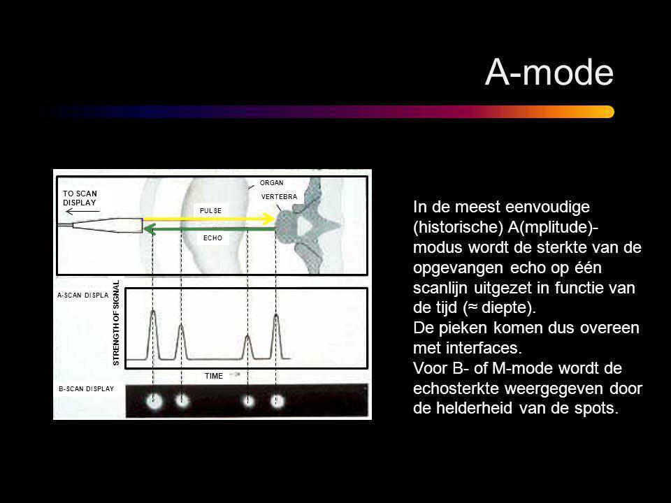 A-mode In de meest eenvoudige (historische) A(mplitude)- modus wordt de sterkte van de opgevangen echo op één scanlijn uitgezet in functie van de tijd