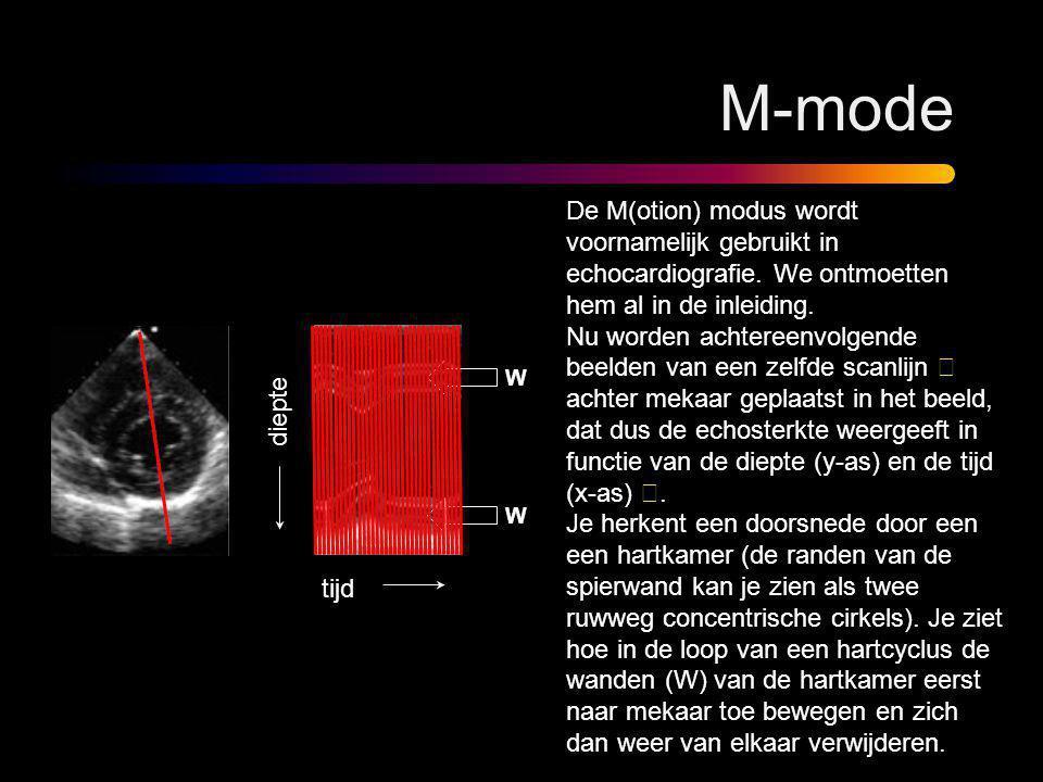 M-mode De M(otion) modus wordt voornamelijk gebruikt in echocardiografie. We ontmoetten hem al in de inleiding. Nu worden achtereenvolgende beelden va