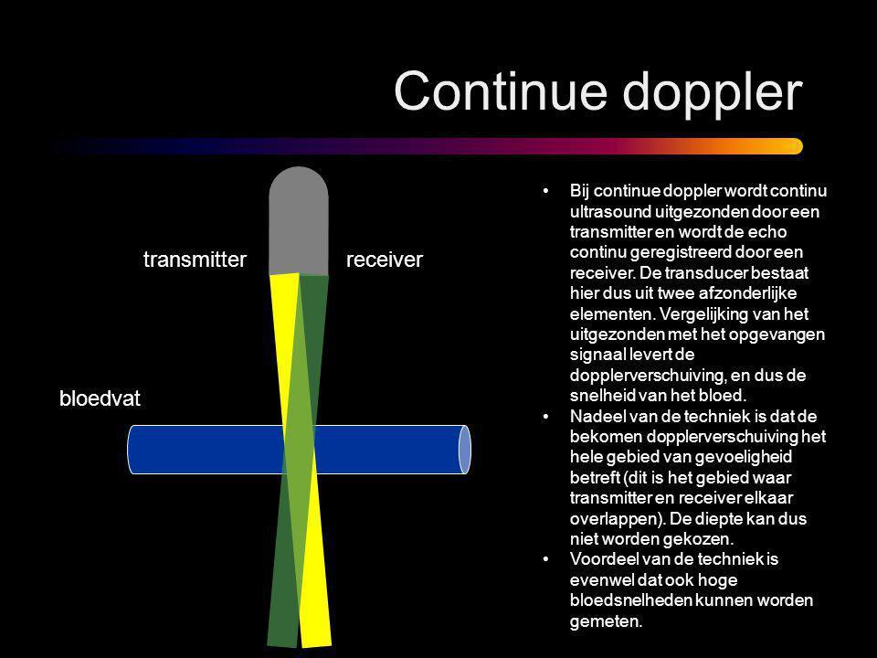 Continue doppler •Bij continue doppler wordt continu ultrasound uitgezonden door een transmitter en wordt de echo continu geregistreerd door een recei