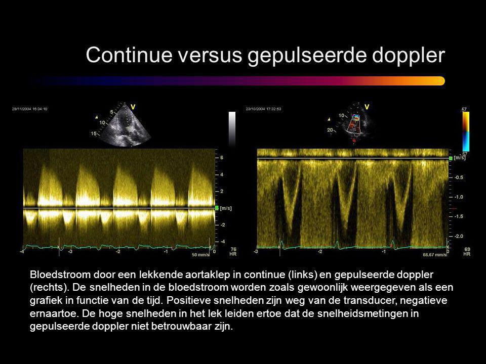 Continue versus gepulseerde doppler Bloedstroom door een lekkende aortaklep in continue (links) en gepulseerde doppler (rechts). De snelheden in de bl