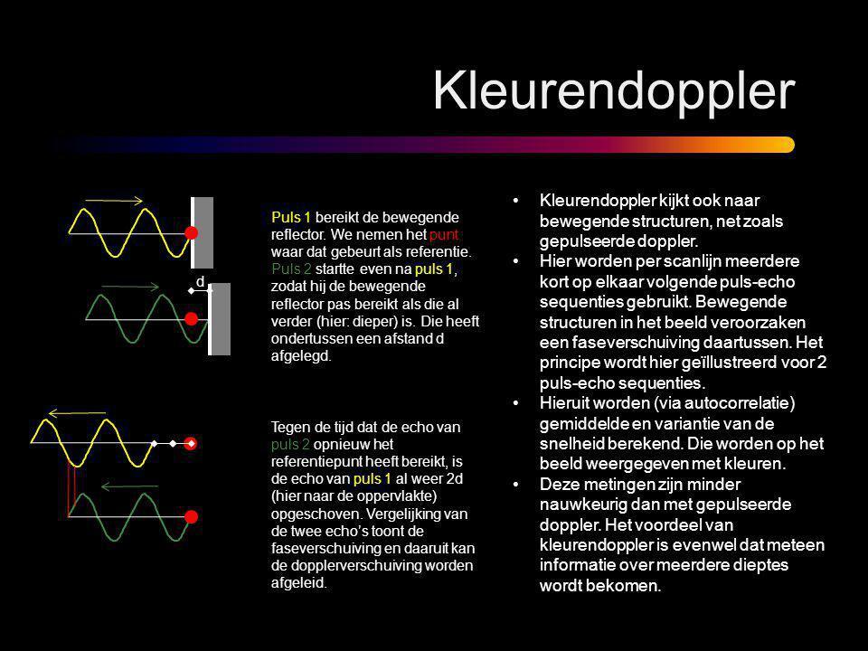 d Kleurendoppler •Kleurendoppler kijkt ook naar bewegende structuren, net zoals gepulseerde doppler. •Hier worden per scanlijn meerdere kort op elkaar