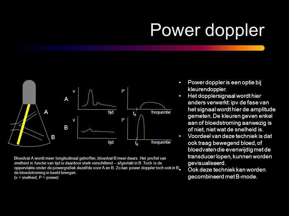 Power doppler •Power doppler is een optie bij kleurendoppler. •Het dopplersignaal wordt hier anders verwerkt: ipv de fase van het signaal wordt hier d