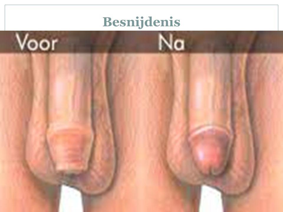 Besnijdenis
