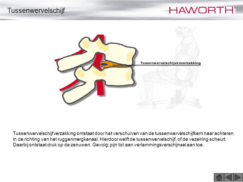 Tussenwervelschijfverzakking ontstaat door het verschuiven van de tussenwervelschijfkern naar achteren in de richting van het ruggenmergkanaal. Hierdo