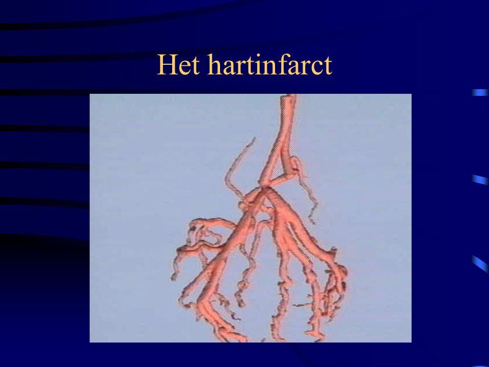 De ambulancier en het belang van het hart- en bloedvatenstelsel •Zonder circulatie wordt geen zuurstof vervoerd en sterven weefsels af (eerst de herse