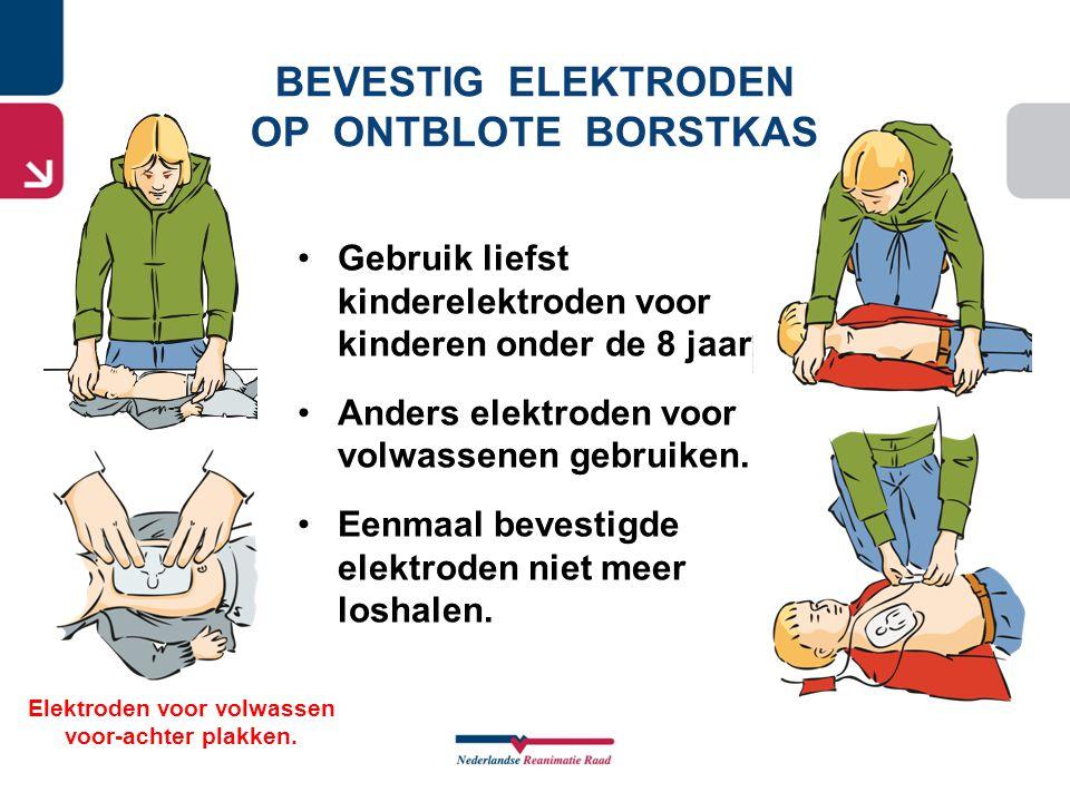 BEVESTIG ELEKTRODEN OP ONTBLOTE BORSTKAS Elektroden voor volwassen voor-achter plakken. •Gebruik liefst kinderelektroden voor kinderen onder de 8 jaar