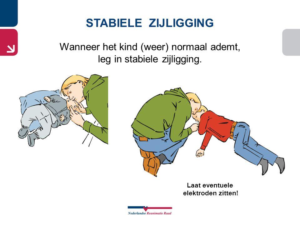 STABIELE ZIJLIGGING Wanneer het kind (weer) normaal ademt, leg in stabiele zijligging. Laat eventuele elektroden zitten!
