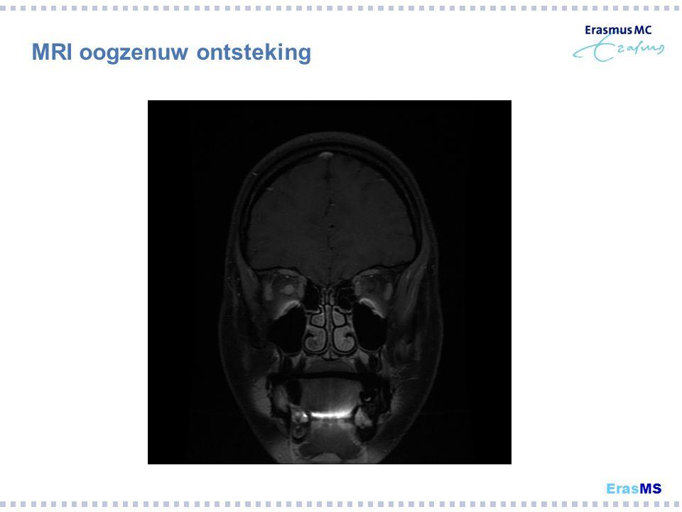 MRI oogzenuw ontsteking ErasMS