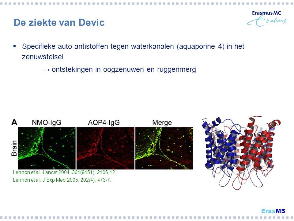 De ziekte van Devic  Specifieke auto-antistoffen tegen waterkanalen (aquaporine 4) in het zenuwstelsel → ontstekingen in oogzenuwen en ruggenmerg Len