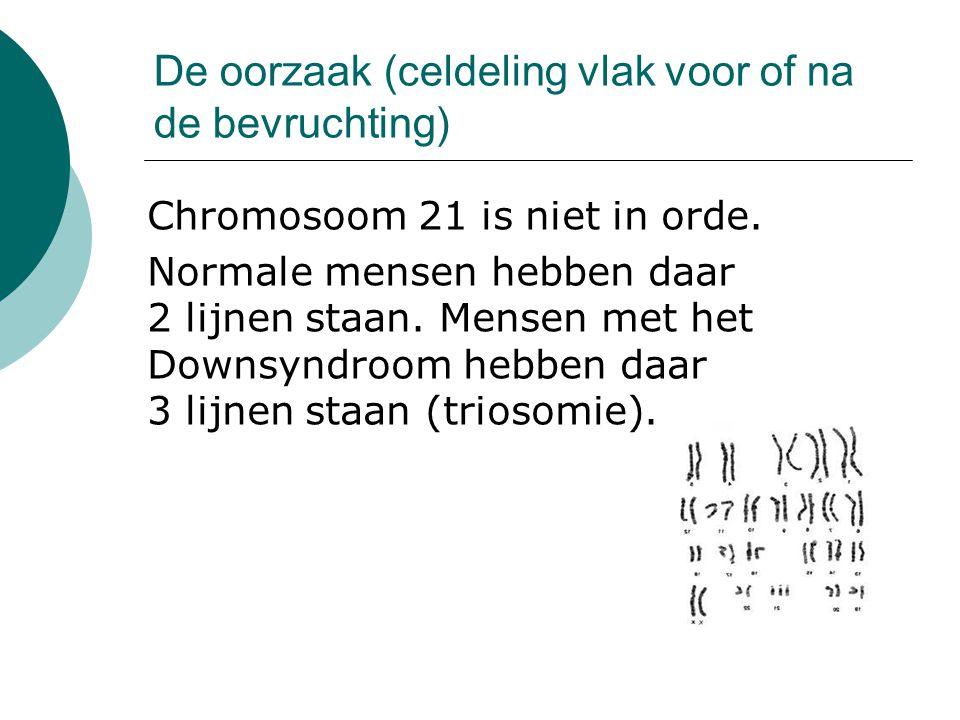 De oorzaak (celdeling vlak voor of na de bevruchting) Chromosoom 21 is niet in orde. Normale mensen hebben daar 2 lijnen staan. Mensen met het Downsyn