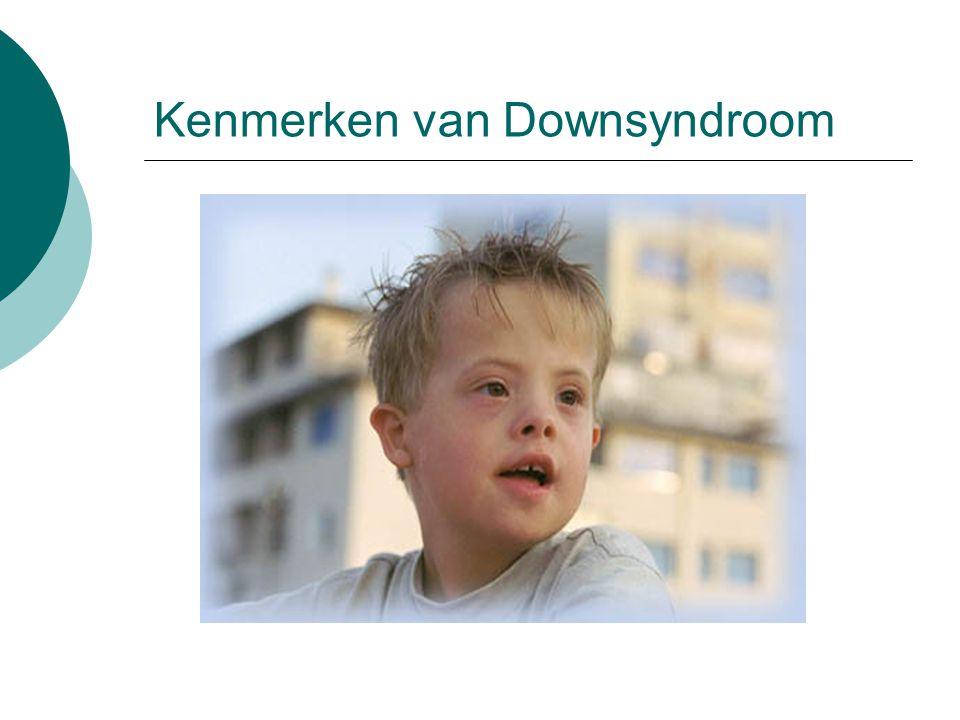 Kenmerken van Downsyndroom