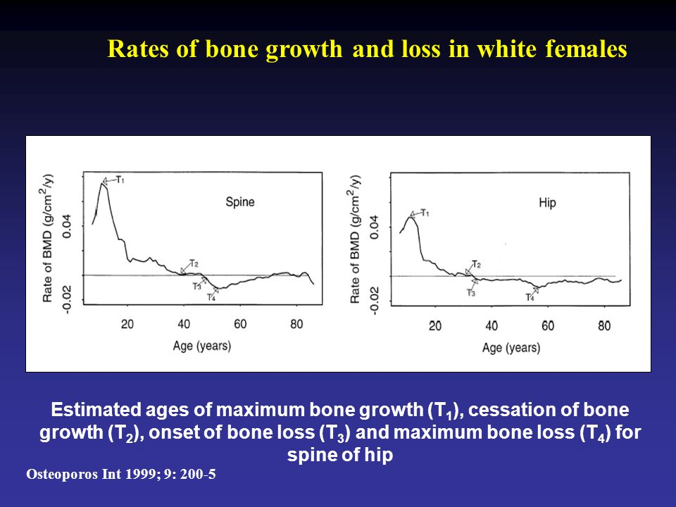 Estimated ages of maximum bone growth (T 1 ), cessation of bone growth (T 2 ), onset of bone loss (T 3 ) and maximum bone loss (T 4 ) for spine of hip Rates of bone growth and loss in white females Osteoporos Int 1999; 9: 200-5