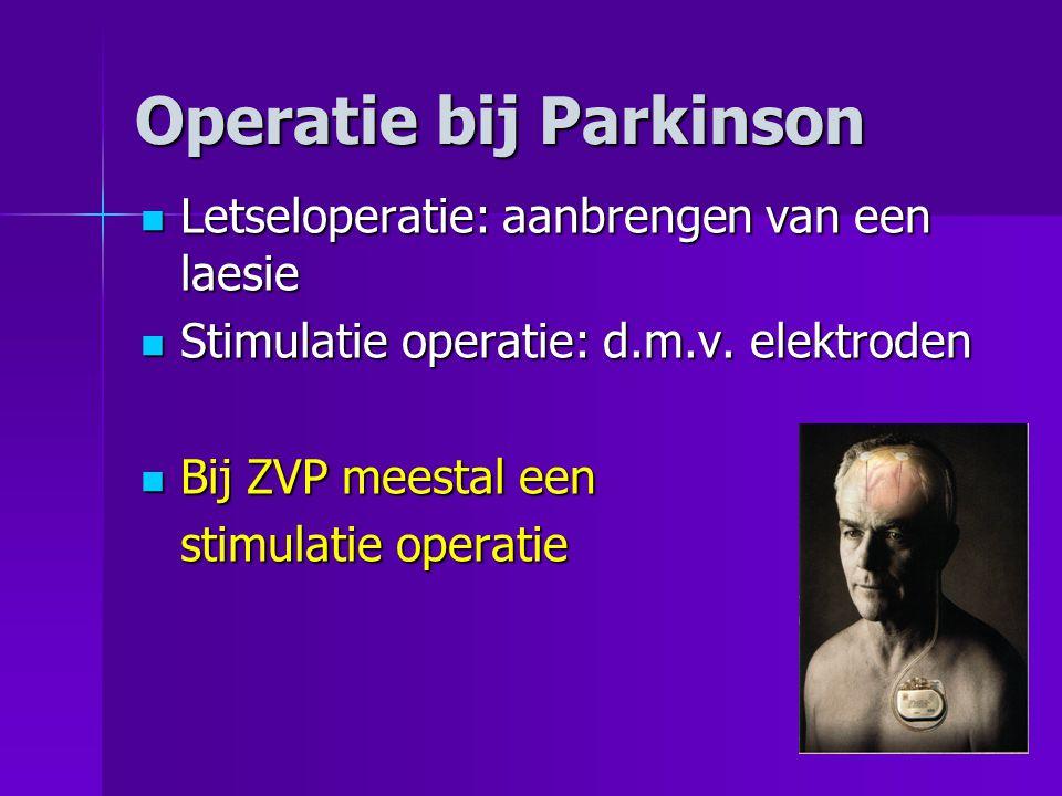 Operatie bij Parkinson  Letseloperatie: aanbrengen van een laesie  Stimulatie operatie: d.m.v. elektroden  Bij ZVP meestal een stimulatie operatie