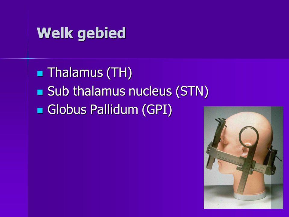 Welk gebied  Thalamus (TH)  Sub thalamus nucleus (STN)  Globus Pallidum (GPI)
