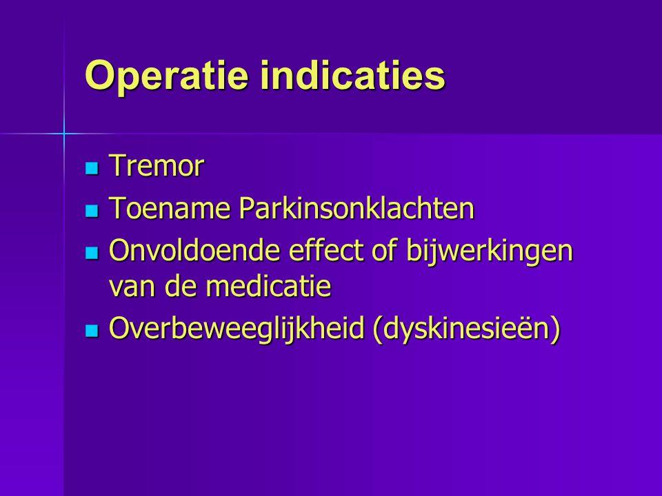 Operatie indicaties  Tremor  Toename Parkinsonklachten  Onvoldoende effect of bijwerkingen van de medicatie  Overbeweeglijkheid (dyskinesieën)