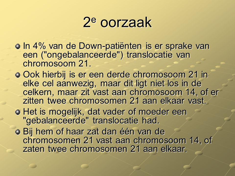 2 e oorzaak In 4% van de Down-patiënten is er sprake van een (