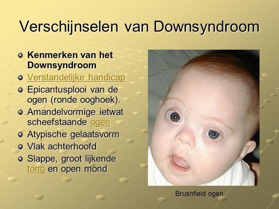 Verschijnselen van Downsyndroom Kenmerken van het Downsyndroom Verstandelijke handicap Verstandelijke handicap Epicantusplooi van de ogen (ronde oogho