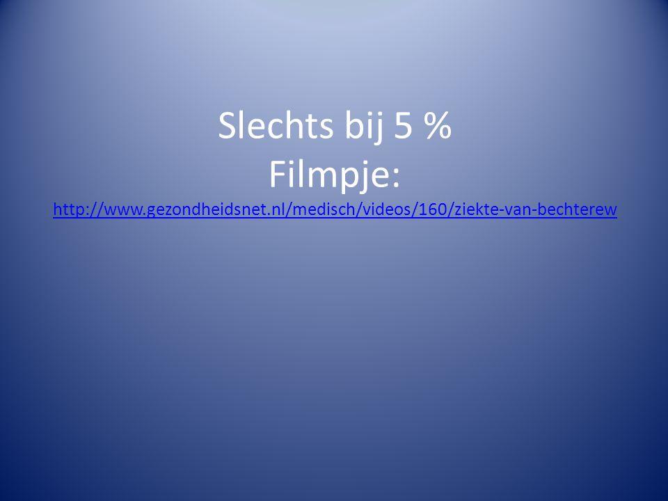 Slechts bij 5 % Filmpje: http://www.gezondheidsnet.nl/medisch/videos/160/ziekte-van-bechterew http://www.gezondheidsnet.nl/medisch/videos/160/ziekte-van-bechterew