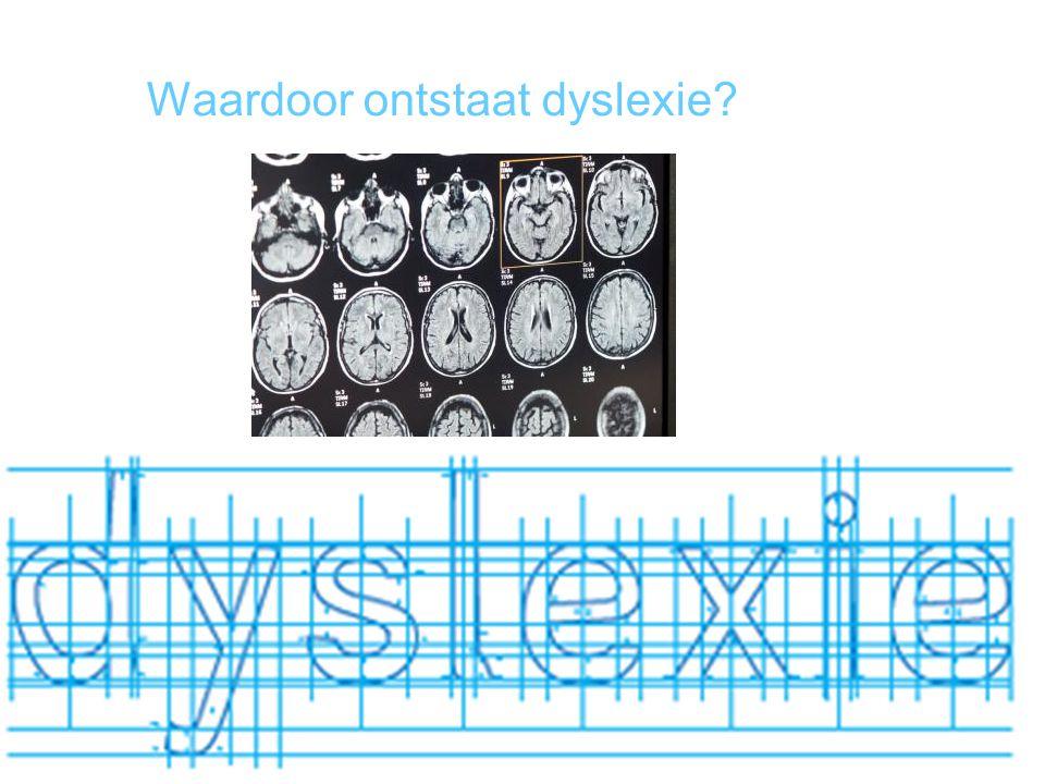 Waardoor ontstaat dyslexie?