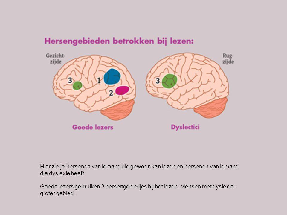 Hier zie je hersenen van iemand die gewoon kan lezen en hersenen van iemand die dyslexie heeft. Goede lezers gebruiken 3 hersengebiedjes bij het lezen