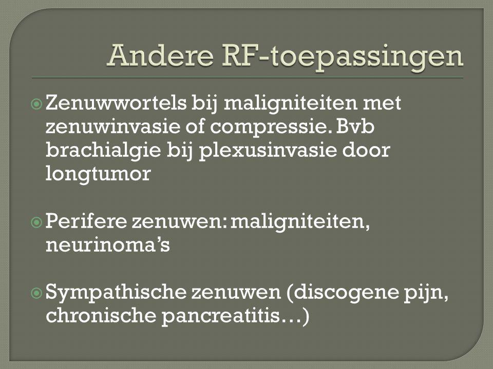  Zenuwwortels bij maligniteiten met zenuwinvasie of compressie. Bvb brachialgie bij plexusinvasie door longtumor  Perifere zenuwen: maligniteiten, n