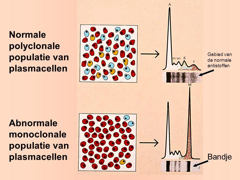 Normale polyclonale populatie van plasmacellen Abnormale monoclonale populatie van plasmacellen Bandje Gebied van de normale antistoffen