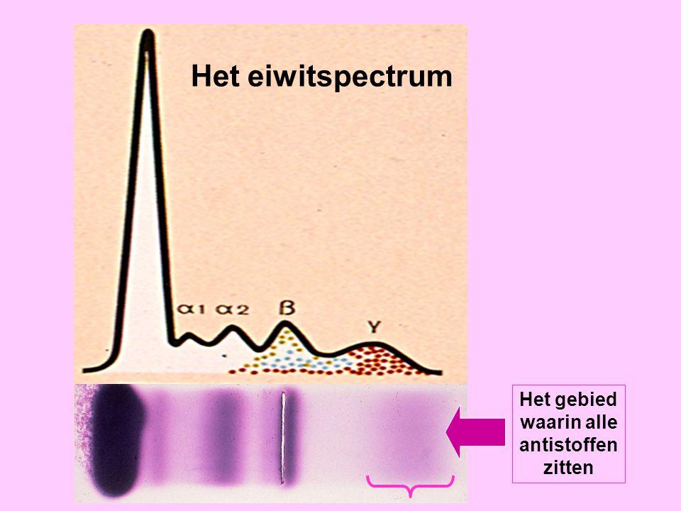Eiwitspectrum Het eiwitspectrum Het gebied waarin alle antistoffen zitten