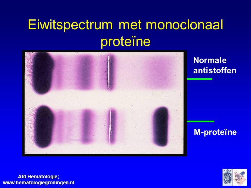 Afd Hematologie; www.hematologiegroningen.nl Eiwitspectrum met monoclonaal proteïne Normale antistoffen M-proteïne