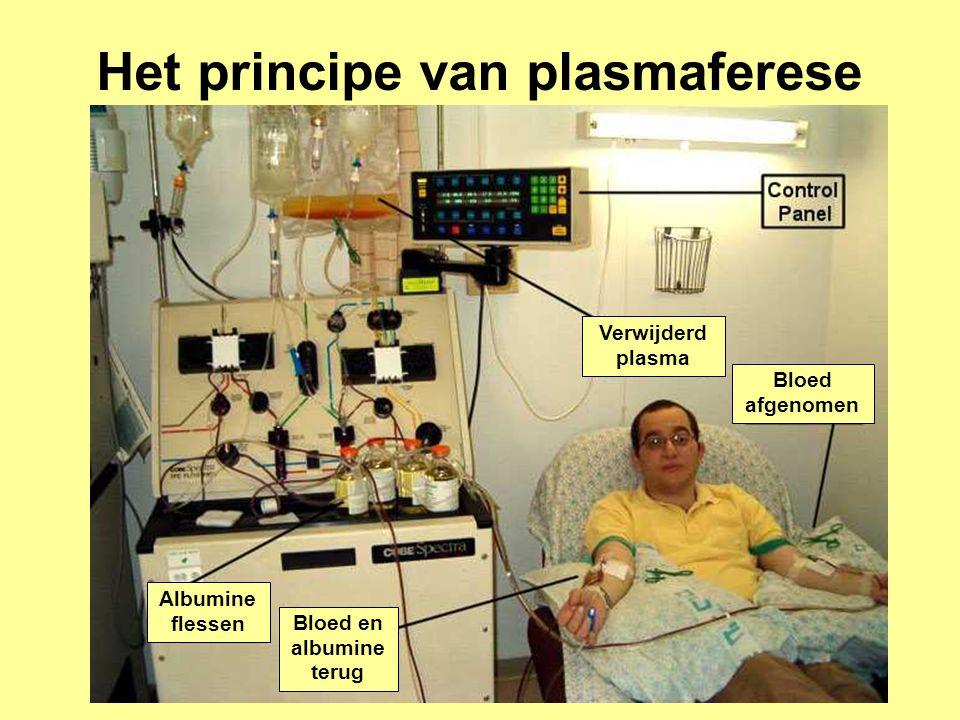 Bloed en albumine terug Bloed afgenomen Verwijderd plasma Albumine flessen Het principe van plasmaferese