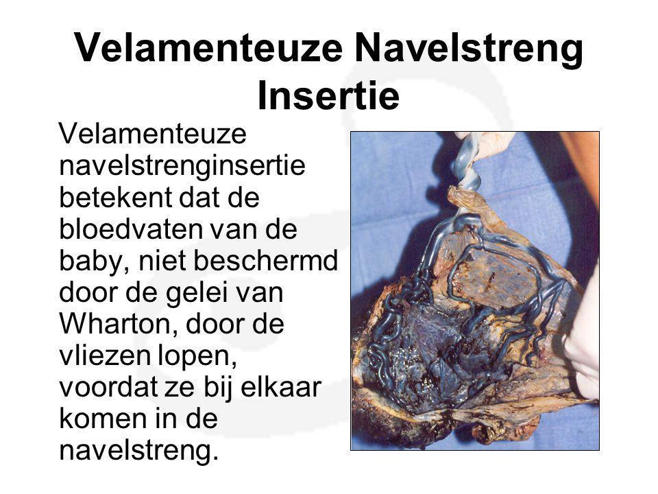 Velamenteuze Navelstreng Insertie Velamenteuze navelstrenginsertie betekent dat de bloedvaten van de baby, niet beschermd door de gelei van Wharton, d