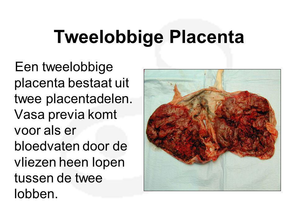 Placenta met een bijlob A succenturiate (accessory) lobe is a second or third placental lobe that is much smaller than the largest lobe.