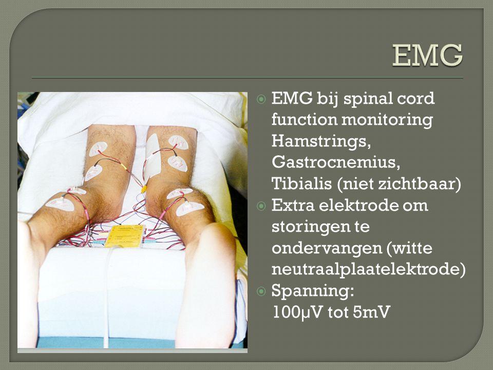  EMG bij spinal cord function monitoring Hamstrings, Gastrocnemius, Tibialis (niet zichtbaar)  Extra elektrode om storingen te ondervangen (witte ne
