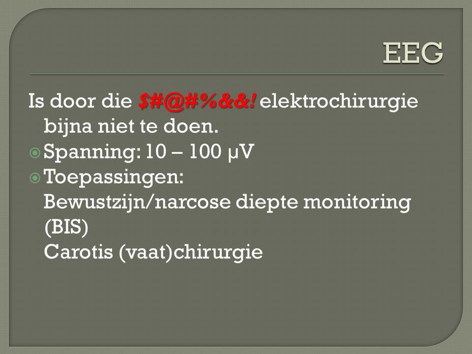 $#@#%&&! Is door die $#@#%&&! elektrochirurgie bijna niet te doen.  Spanning: 10 – 100 µV  Toepassingen: Bewustzijn/narcose diepte monitoring (BIS)