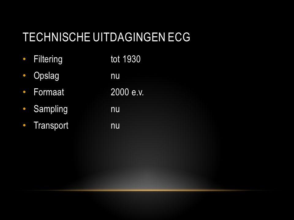TECHNISCHE UITDAGINGEN ECG • Filteringtot 1930 • Opslagnu • Formaat2000 e.v.