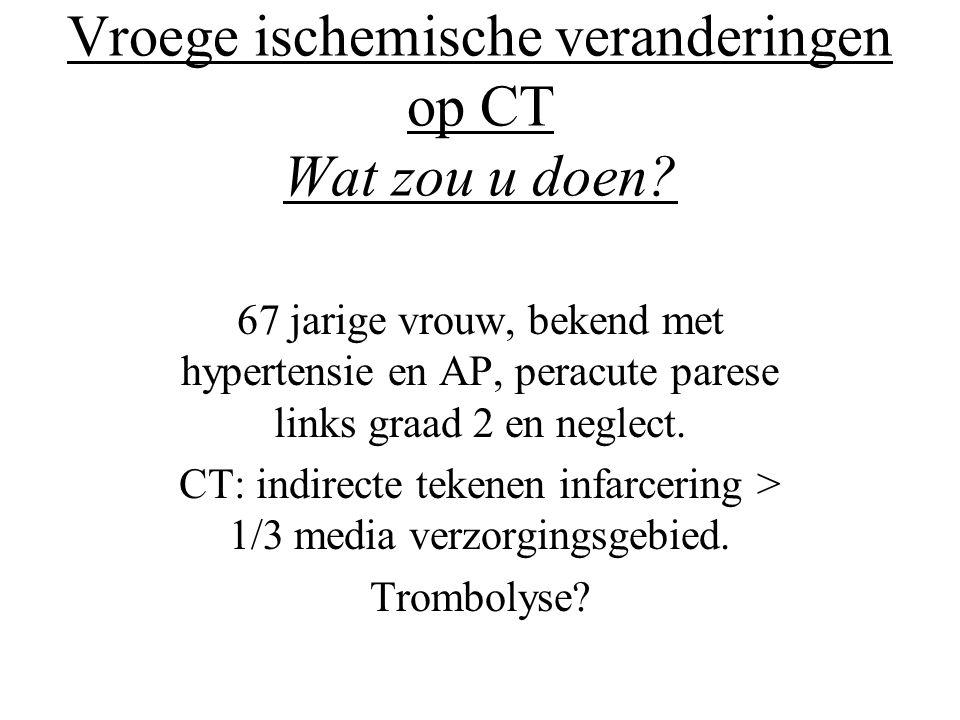 Vroege ischemische veranderingen op CT Wat zou u doen? 67 jarige vrouw, bekend met hypertensie en AP, peracute parese links graad 2 en neglect. CT: in