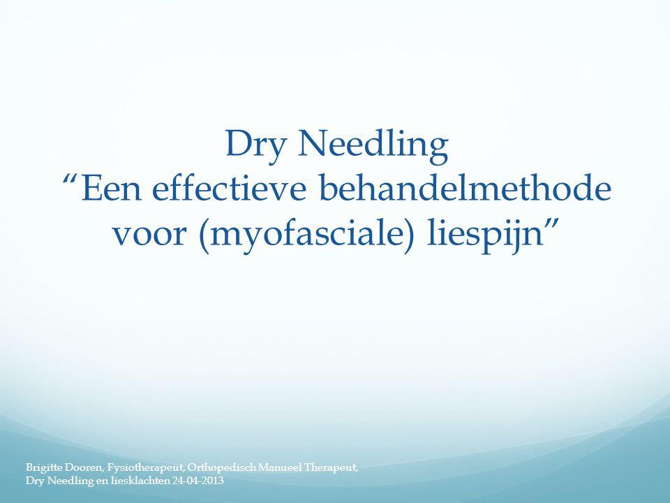 """Dry Needling """"Een effectieve behandelmethode voor (myofasciale) liespijn"""" Brigitte Dooren, Fysiotherapeut, Orthopedisch Manueel Therapeut, Dry Needlin"""