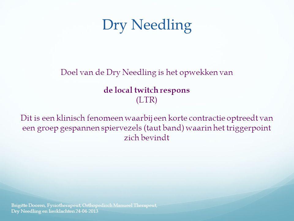 Dry Needling Doel van de Dry Needling is het opwekken van de local twitch respons (LTR) Dit is een klinisch fenomeen waarbij een korte contractie optr