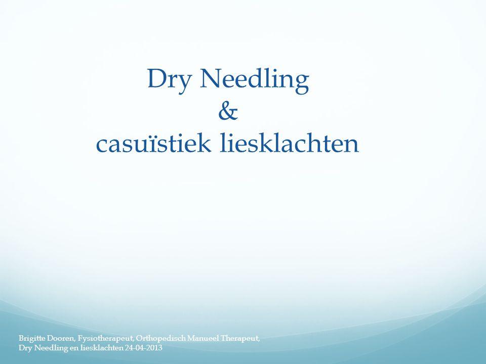 Dry Needling & casuïstiek liesklachten Brigitte Dooren, Fysiotherapeut, Orthopedisch Manueel Therapeut, Dry Needling en liesklachten 24-04-2013