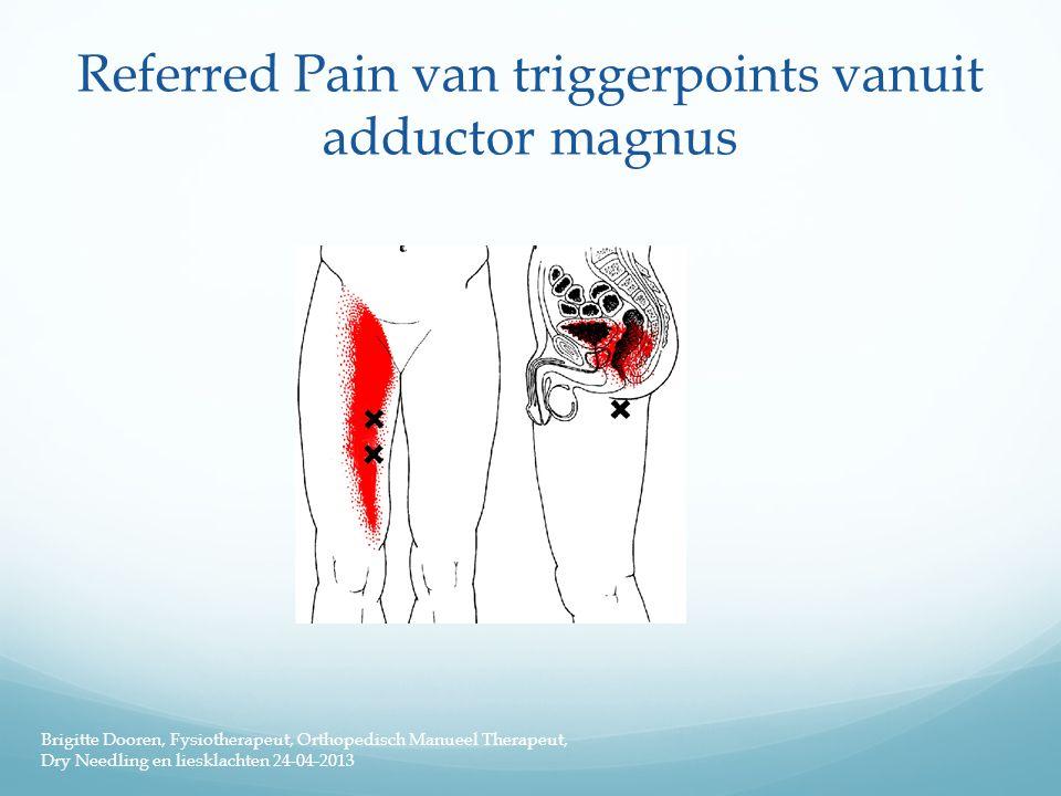 Referred Pain van triggerpoints vanuit adductor magnus Brigitte Dooren, Fysiotherapeut, Orthopedisch Manueel Therapeut, Dry Needling en liesklachten 2